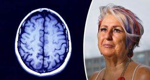 Dementia-cure-724592.jpg